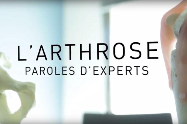 Arthrose Nice Vidéo Traitement