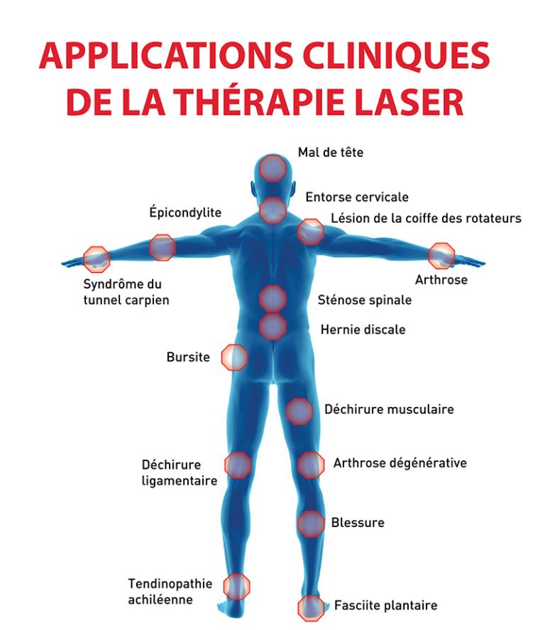 Thérapie Laser CITM Nice Aix